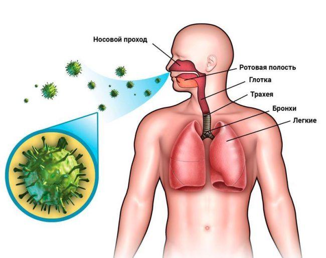 Туберкулезом можно заразиться воздушно-капельным путем
