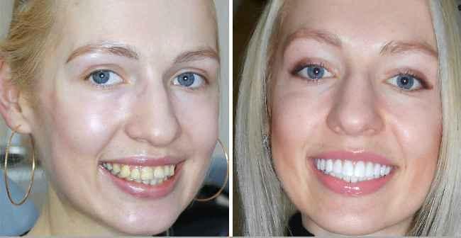 Темный цвет зубов является показанием к установке виниров