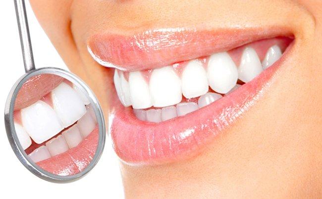 Виниры - это тоненькие пластинки, замещающие внешний слой зубов. Они позволяют корректировать форму и цвет зубных единиц