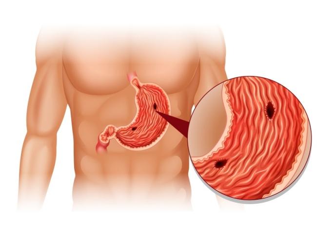 Язва желудка - хроническое заболевание, характеризуется образованием язвочек на стенках желудка