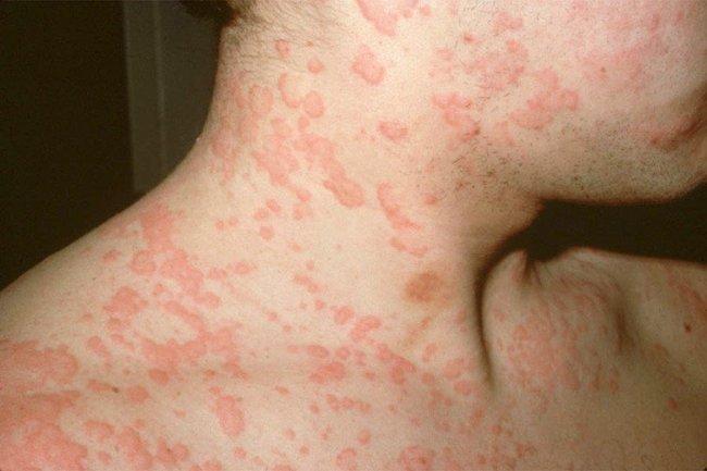 Бициллин 5 может вызвать аллергическую реакцию по типу крапивницы