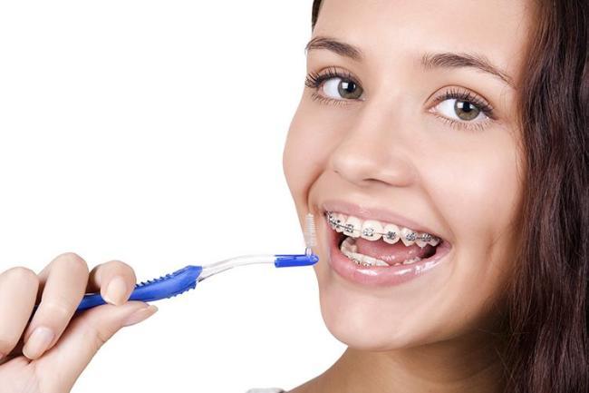 Неправильный уход за брекетами может привести к изменению цвета здоровой эмали зубов, а так же может стать причиной воспаления десен