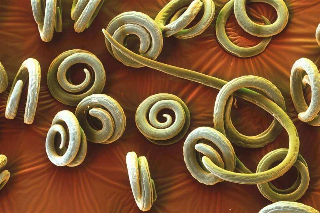Глисты у взрослых - распространенное явление, заражение паразитами может вызвать неприятные последствия