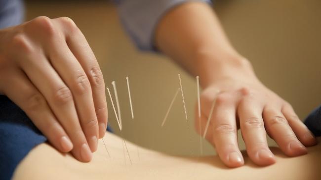 Иглоукалывание - широко распространенная методика альтернативной медицины