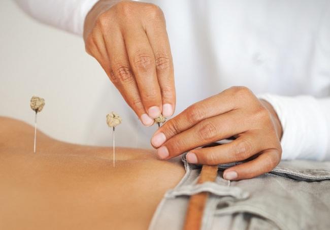 Иглоукалывание проводится каждый день или через день, курс лечения составляет 10-20 сеансов
