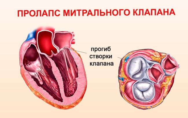 Пролапс митрального клапана — это выбухание, выпячивание одной или обеих створок митрального клапана сердца в полость левого предсердия во время сокращения левого желудочка