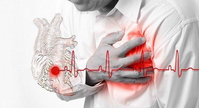 Митральная регургитация может возникнуть как следствие ишемической болезни сердца