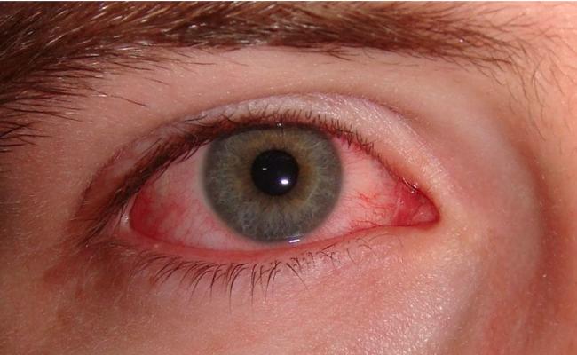 Конъюнктивит - распространенное заболевание глаз, лечением которого занимается врач-офтальмолог