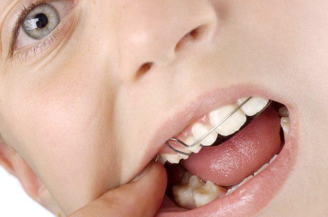 Ортодонтические пластины для исправления прикуса у детей
