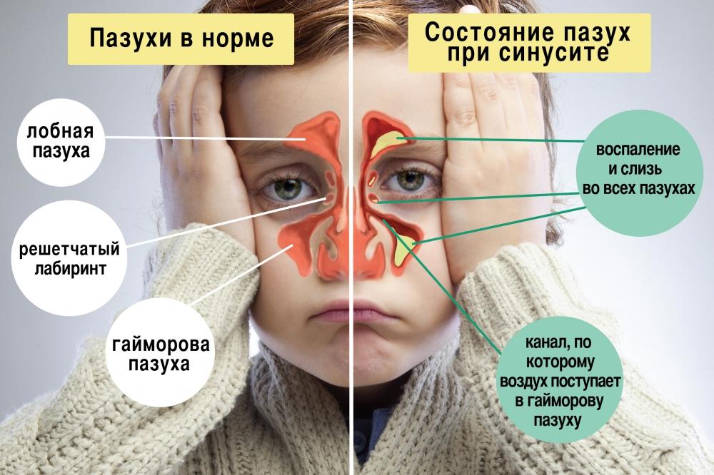 На фото показано состояние носовых пазух в норме и при синусите.