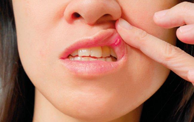 Стоматит - воспаление слизистой оболочки ротовой полости, заболевание встречается как у взрослых, так и у детей