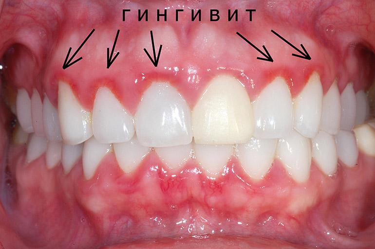 Гексализ - эффективное средство для лечения гингивита