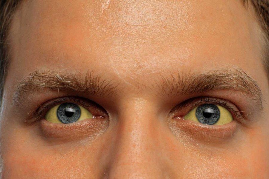 При гепатите В наблюдается пожелтение склер глаз