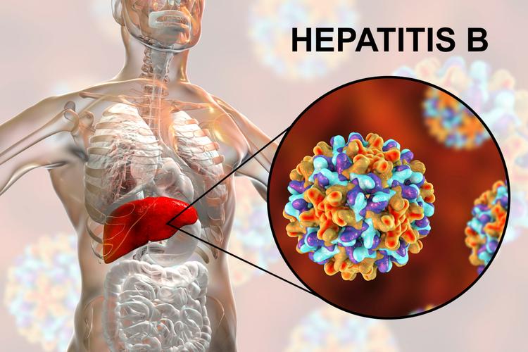 Гепатит B - это инфекционное заболевание печени, вызванное вирусом гепатита типа B