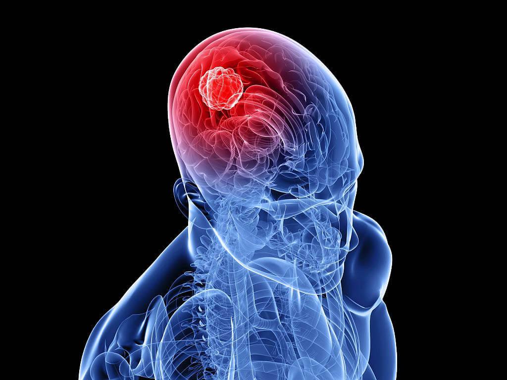 Невролог и невропатолог лечат опухоли головного мозга и позвоночника