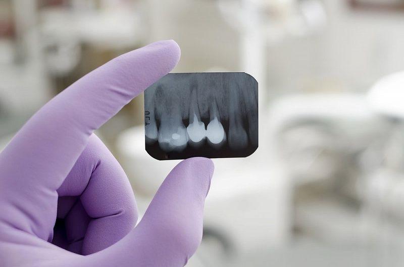 Рентген зубов - наиболее достоверный метод диагностики периодонтита