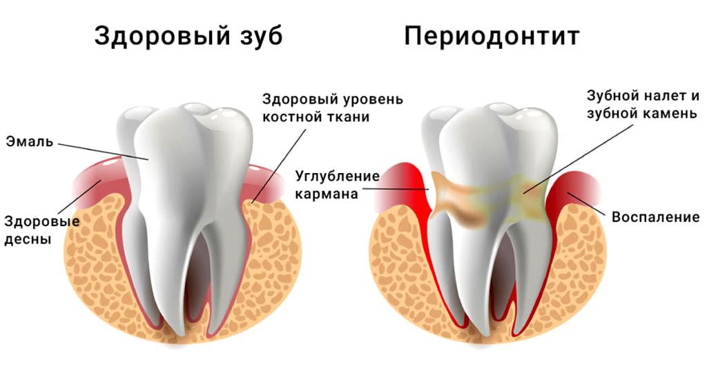 Периодонтит - воспаление тканей, расположенных вокруг корня зуба