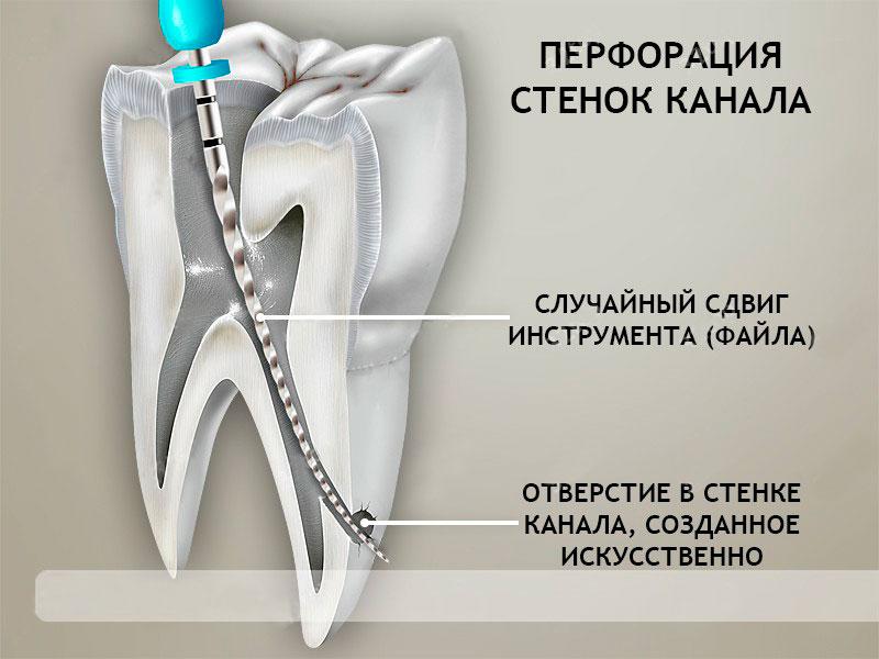 Одной из причин зубной боли после лечения пульпита может быть перфорация корня зуба