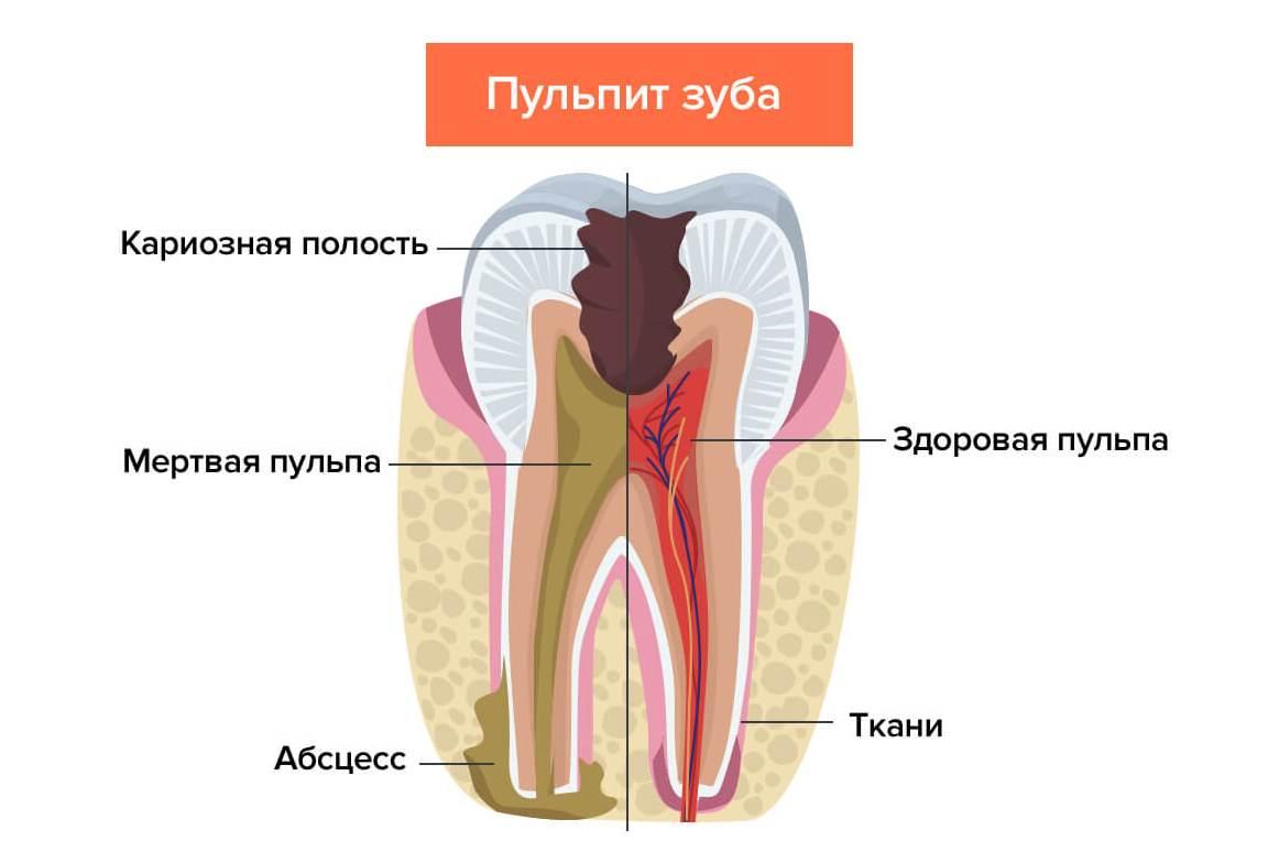 Пульпит — это последняя стадия развития кариеса, когда поражаются ткани пульпы и поражение достигает нервов