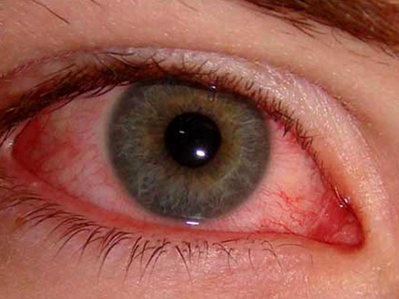 Софрадекс назначают для лечения аллергического конъюнктивита