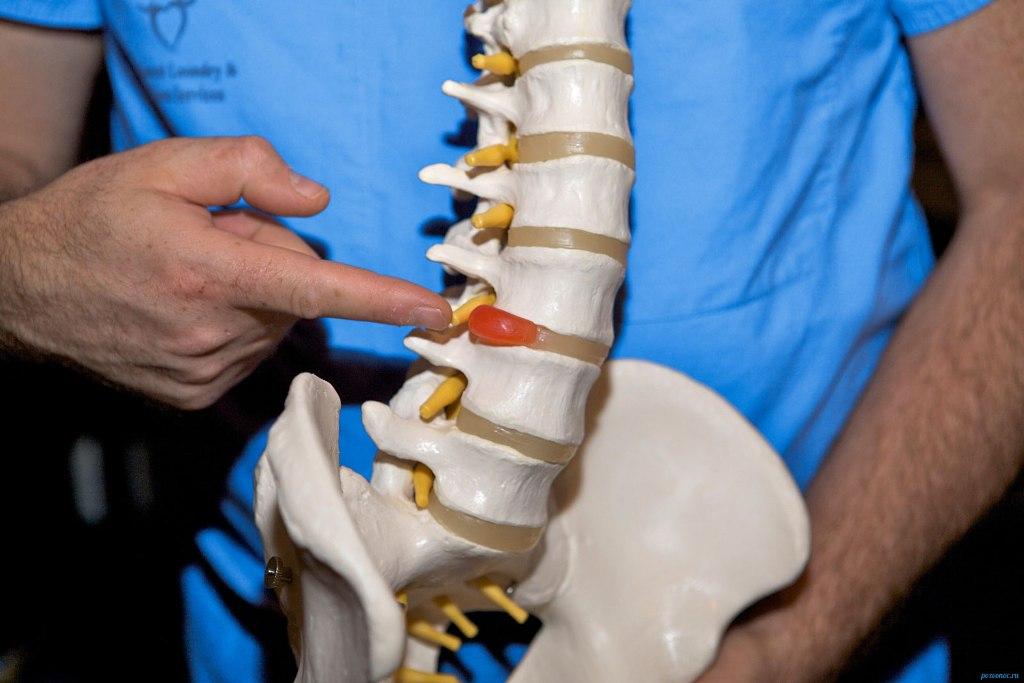 Межпозвоночная грыжа - заболевание, которое лечит врач-травматолог