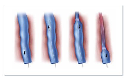 На фото показана схема эндовенозного лазерного лечения. Изображение предоставлено Diomed, Inc.
