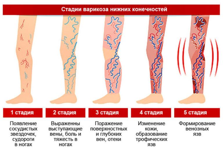 На фото показаны 5 стадий варикоза нижних конечностей. 1 стадия - появление сосудистых звездочек, судороги в ногах. 2 стадия - выражены выступающие вены, боль и тяжесть в ногах. 3 стадия - поражение поверхностных и глубоких вен. 4 стадия - изменение кожи, образование трофических язв. 5 стадия - формирование венозных язв.