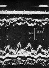 Нормальная эхокардиограмма.