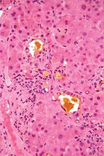 Желчь (желтый цвет) в биоптате печени, показывающей холестаз печени (микрофотография с гематоксилином и эозином окрашивают). Нефрон.
