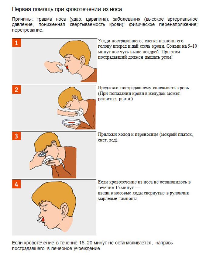 На фото инструкции, по остановке носового кровотечения, показаны пошаговые действия, как остановить кровь из носа, для наглядности.