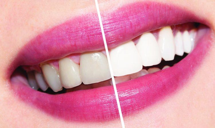 Результат до и после отбеливания зубов.