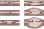 Стриктура уретры: причины, симптомы, лечение