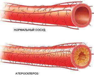 Атеросклероз - это образование липидных бляшек в сосудах