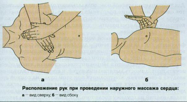 Непрямой массаж сердца будет максимально эффективным в том случае, когда его делают на ровной жесткой поверхности