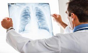При бронхите отчетливо прослеживается затруднение дыхания