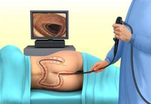 Для подтверждения диагноза врач может назначить ректоскопию