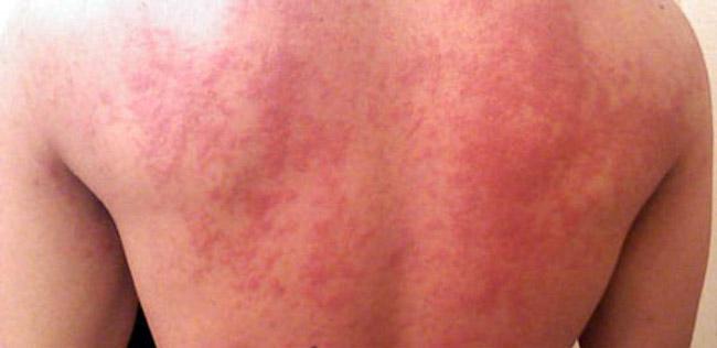 В некоторых случаях Фастум гель вызывает побочные эффекты