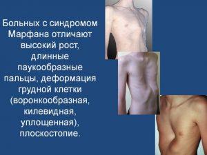Синдром Марфана приводит к деформации грудной клетки