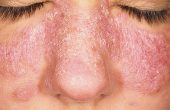 What is lupus and how to treat it?