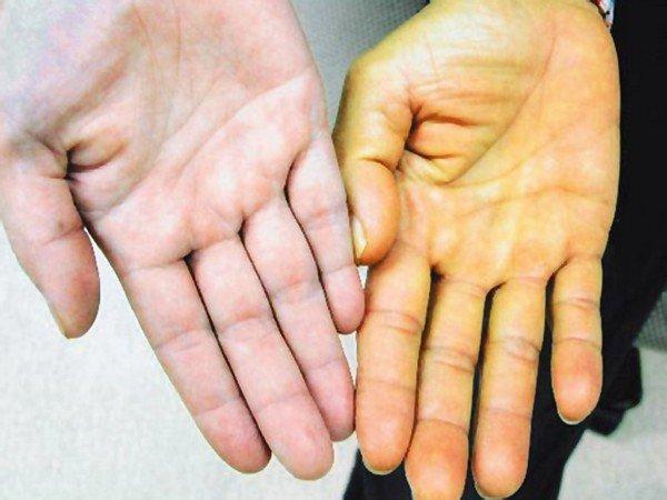 Один из симптомов цирроза - желтизна слизистых оболочек, глазных склер, кожи, как на фото примере.