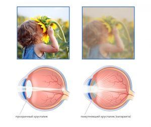 Катаракта может развиваться в силу возрастных особенностей или патологических заболеваний