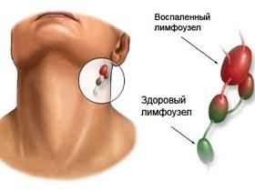 Увеличение лимфатических узлов фото