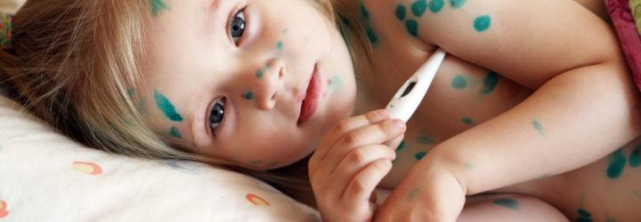 Мазь Ацикловир также используют для уменьшения симптомов сыпи у взрослых и детей при заболевании ветряной оспой