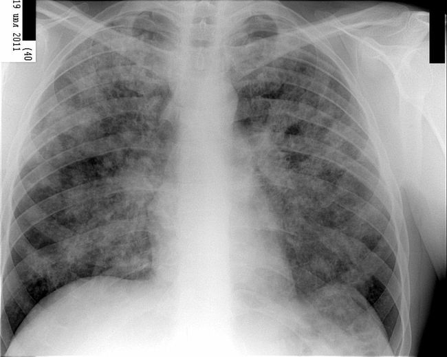 Идиопатический фиброзирующий альвеолит легких - это заболевание с высокой степенью степенью смертности, практически не поддающееся лечению