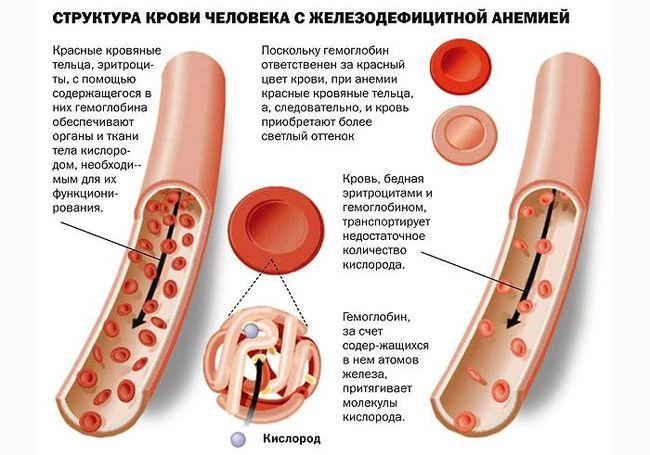Из-за анемии (малокровия) у человека уменьшается количество красных кровяных телец