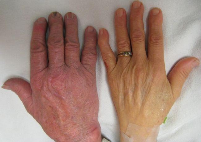 При железодефицитной анемии меняется цвет кожных покровов