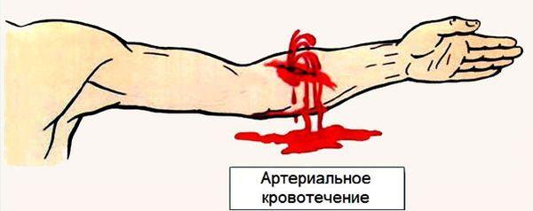 Артериальное кровотечение при правильных действиях можно остановить за 10 минут