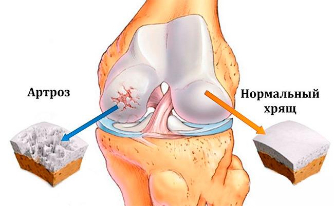 Женщины, а также лица старше 40 лет наиболее подвержены возникновению артроза коленного сустава