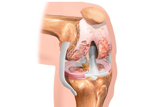 Развитие заболевания зависит от совокупности воздействующих негативных факторов, которые усугубляются с возрастом и могут в итоге привести к разрушению коленного хряща