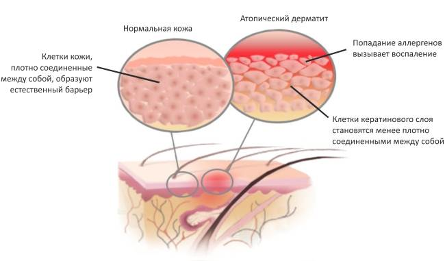 Атопический дерматит у детей – хроническое аллергическое заболевание кожных покровов, которое развивается у детей с генетической предрасположенностью к атопии